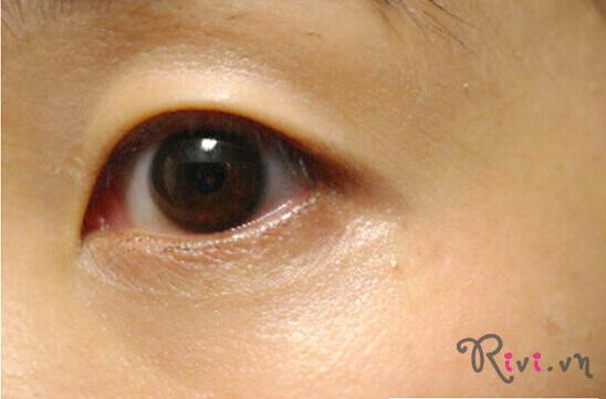 Kem mắt OHUI THE FIRST Eye Cream