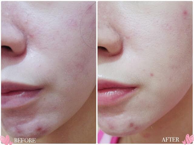 Kem dưỡng POND'S Skincare Detox Day Cream