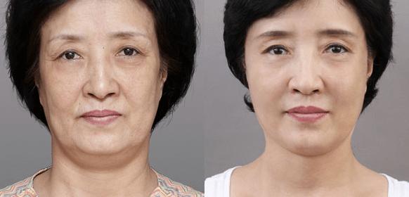 Kem dưỡng Olay Facial Moisturizers AGE DEFYING CLASSIC NIGHT CREAM