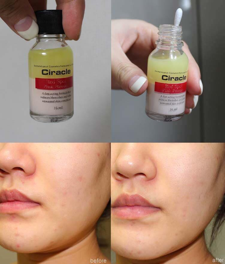Dung Dịch Trị Mụn Ciracle Red Spot Pink Powder