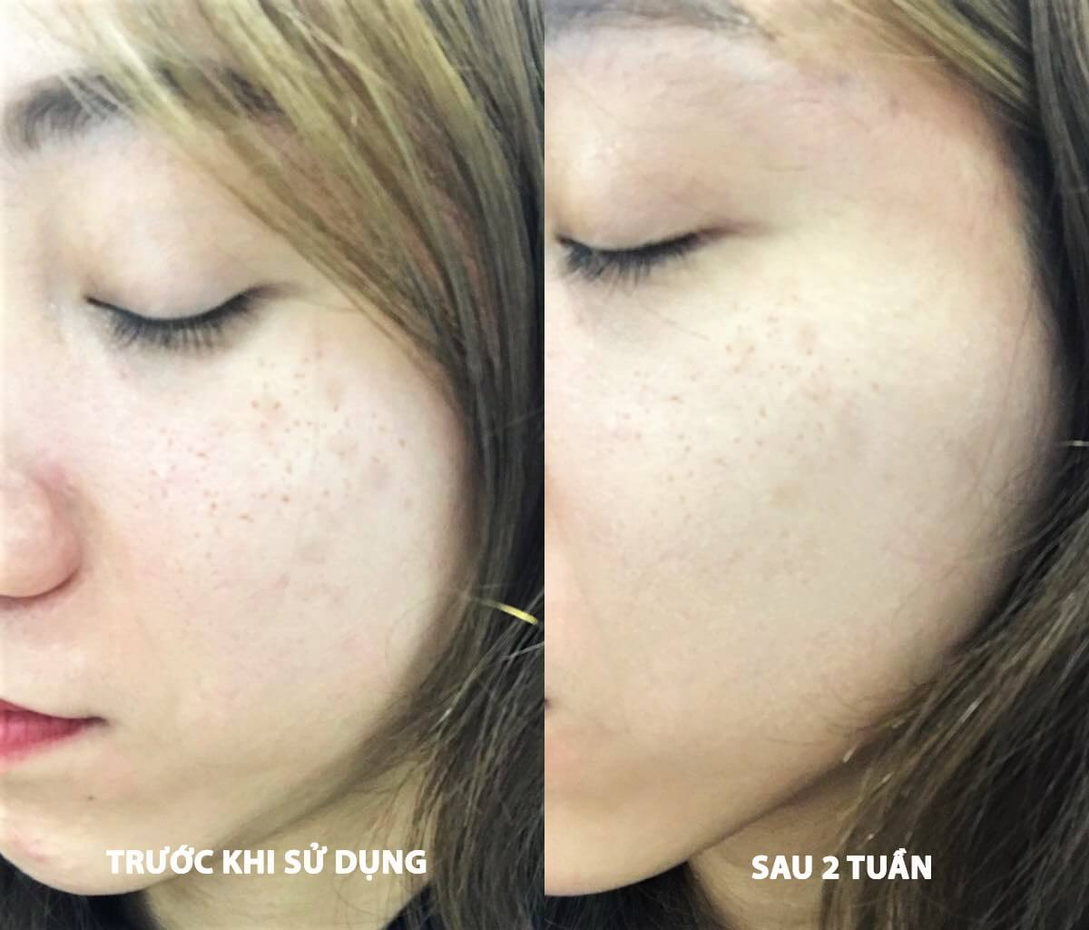 tinh chất đặc trị thâm nám Eucerin UltraWHITE + SPOTLESS Spot Corrector